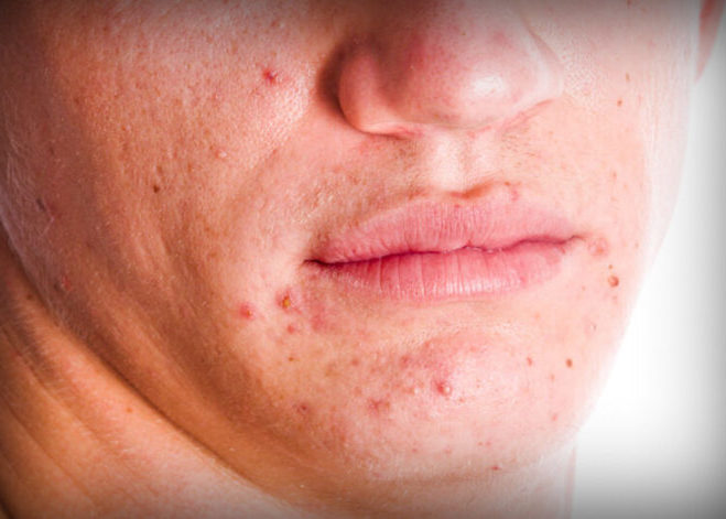 Красная угревая сыпь на лице