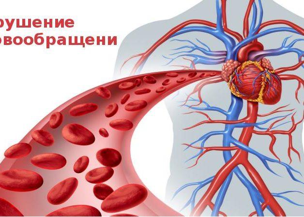 Нарушение кровоциркуляции