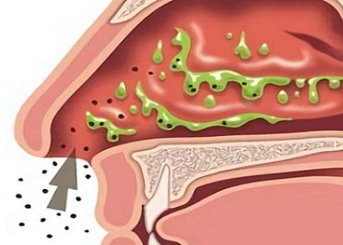 Острое воспаление слизистых оболочек