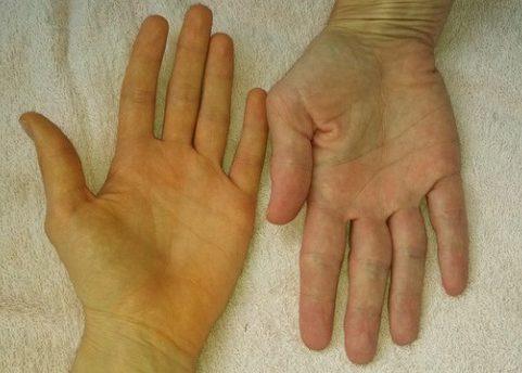 Пожелтение кожных покровов