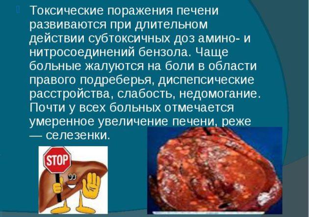 Токсическое поражение печени