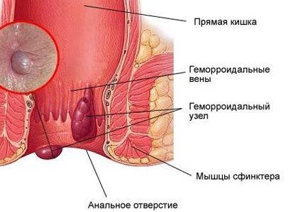 Воспаление геморроидальных узлов