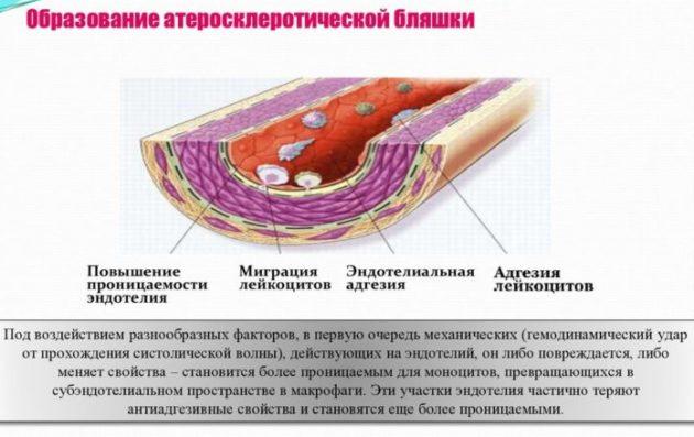Атеросклеротических бляшек