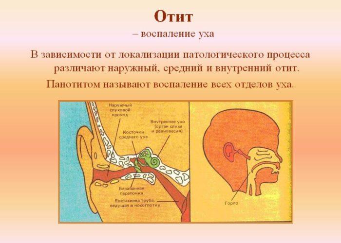 Отиты бактериального происхождения