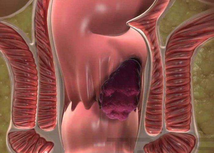 Появление уплотнений (геморроидальных узлов)
