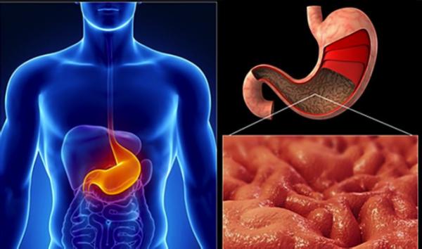 Раздражения слизистых оболочек пищеварительного тракта