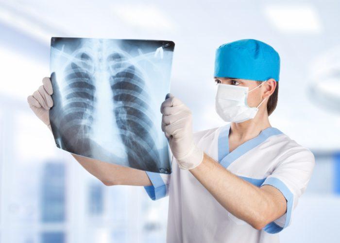 Рентгенографическое исследование легких