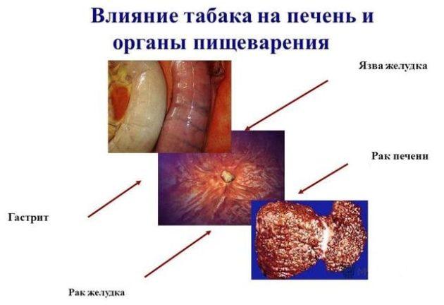 Табак негативно влияет на усвоение лекарственных препаратов