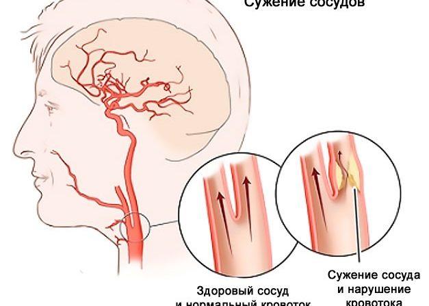 Внезапное сужение просвета сосудов головного мозга