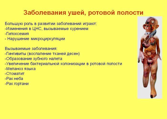 Заболевания ротовой полости, вызванные курением