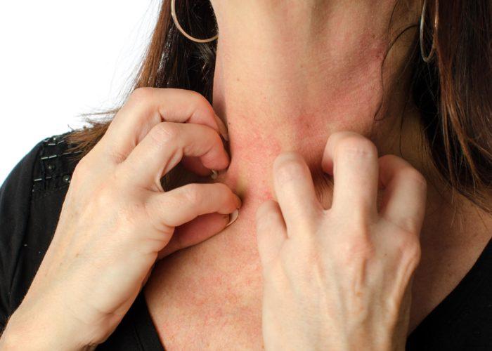 Аллергии к препаратам