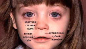 Cглаженный губной желобок