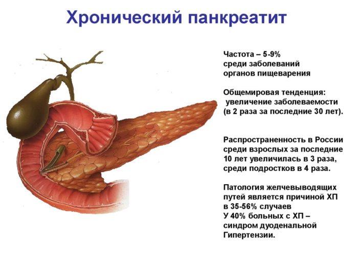 Хронический пакреатит