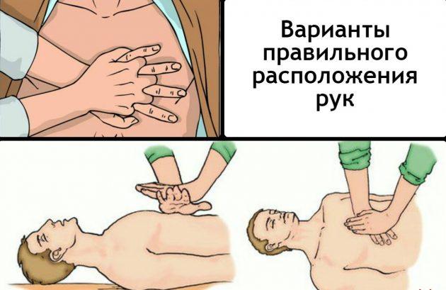 Как правильно сделать непрямой массаж сердца