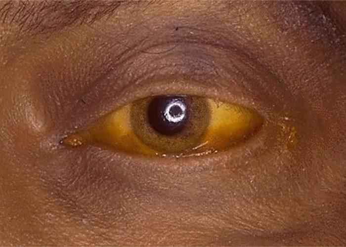 Кожа и склеры окрашиваются в желтый цвет