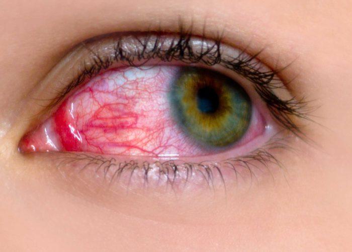 Красные глазные яблоки