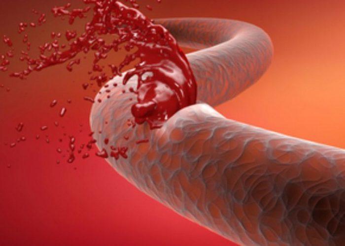 Наличие заболеваний и повреждений, вызывающих кровотечение