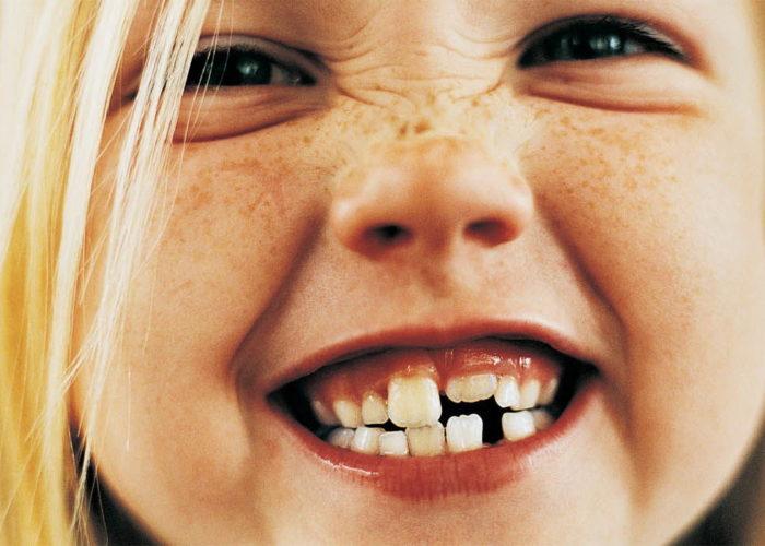 Недостаточное развитие челюсти