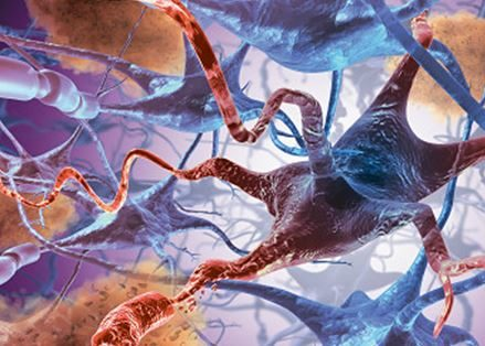 Некроз мозговых клеток