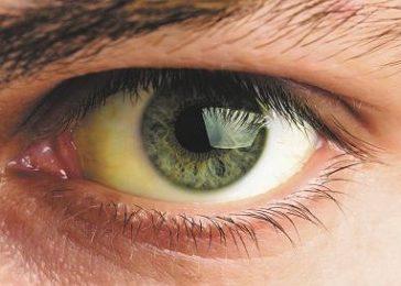Окрашивание склер глаз в желтый цвет