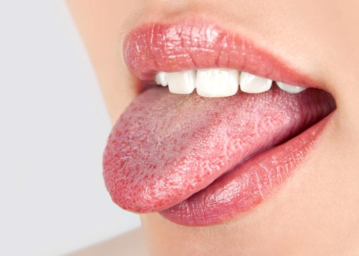 Опухание языка