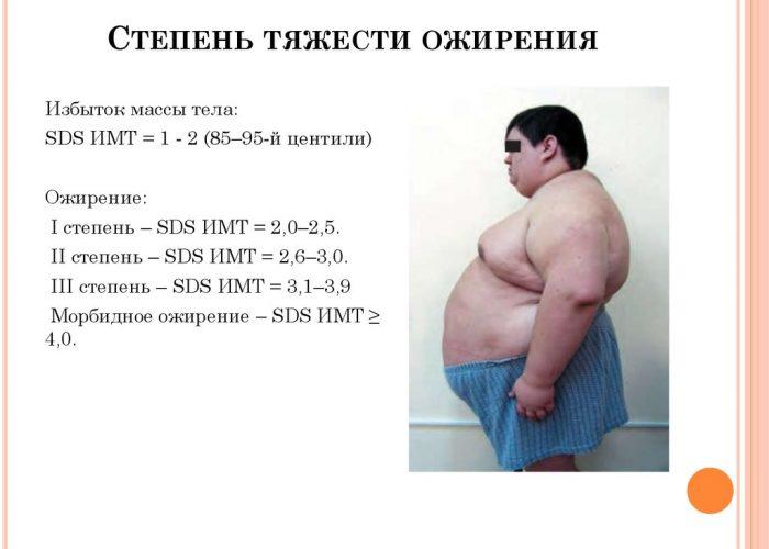 Ожирение разнообразных стадий