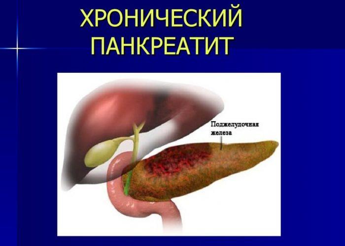 Переход панкреатита в хроническую форму
