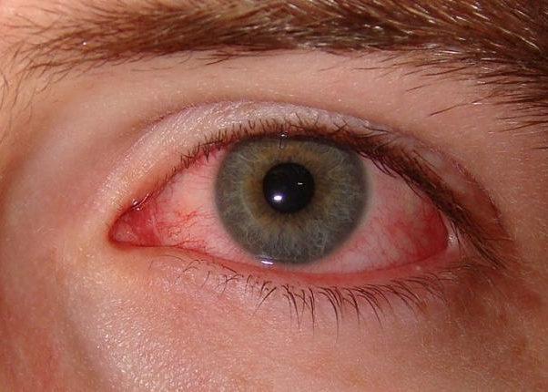 Покраснение глазных яблок