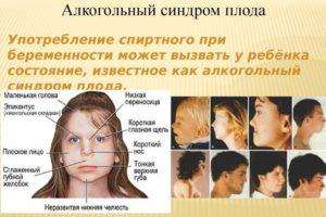 Последствия употребления спиртного при беременности