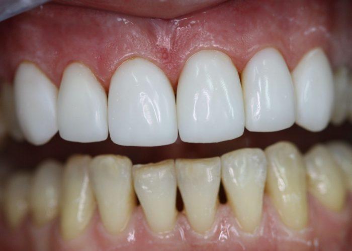 Разрушает зубную эмаль
