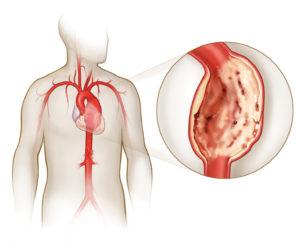 Разрыв сосудов и мышц
