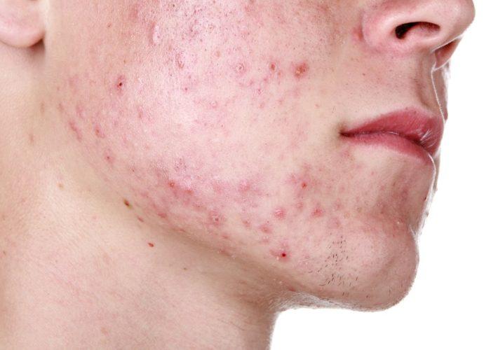 Развитие аллергии в виде сыпи