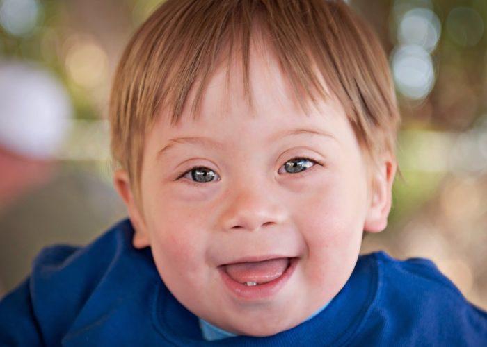 Ребенок может иметь своеобразное строение лица