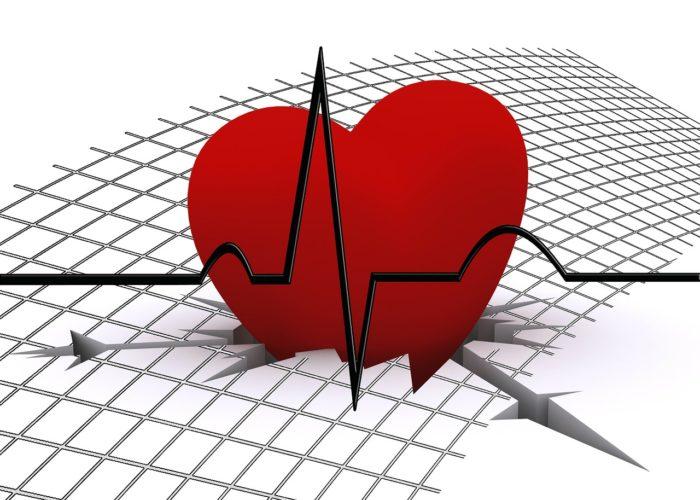 Сбой в работе сердца