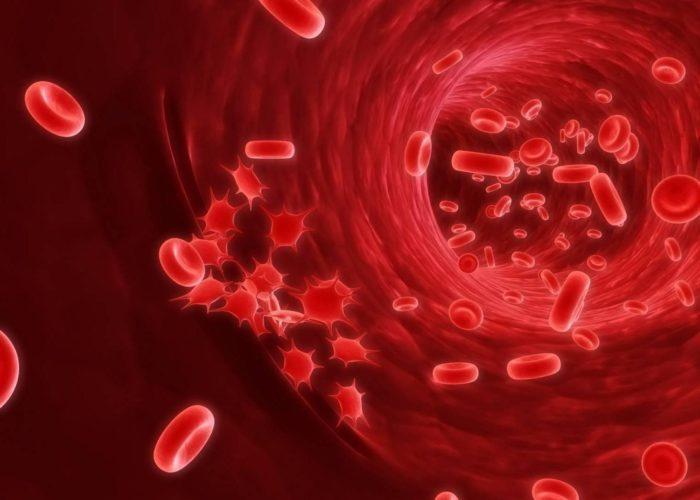 Серьезные заболевания крови