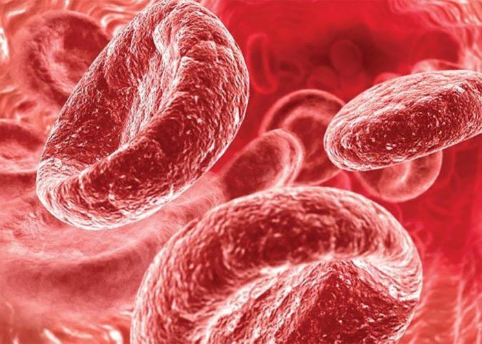 Снижение уровня гемоглобина