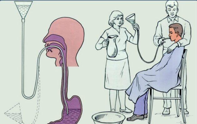 Так происходит промывание желудка спомощью зонда