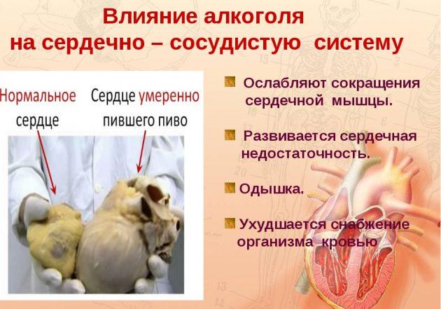 Влияние алоголя на сердце