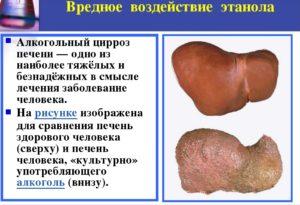 Воздействие этанола на печень