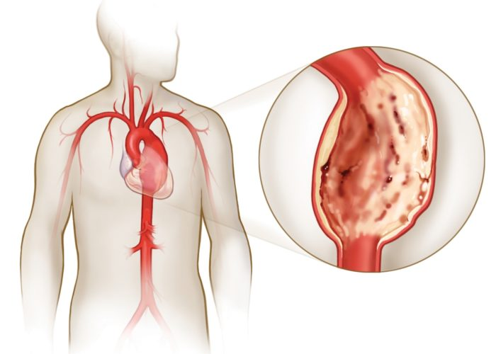 Вызывает органическое поражение сердца