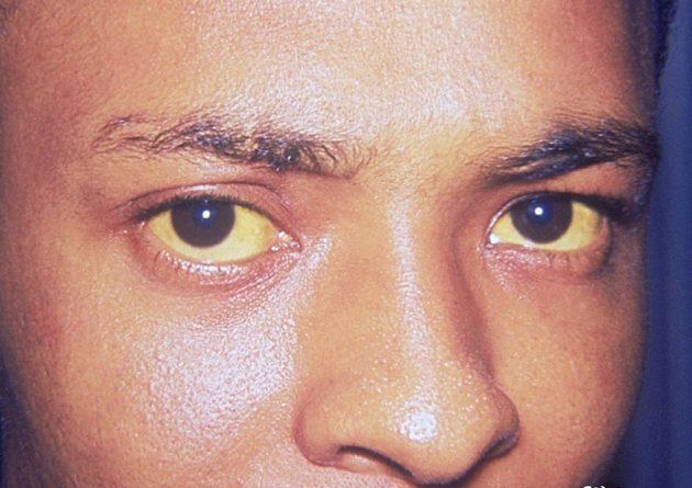Желтые зрачки