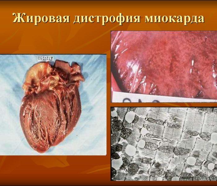 Жировая дистрофия миокарда
