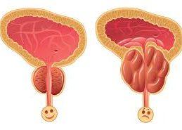 Заболеваний предстательной железы