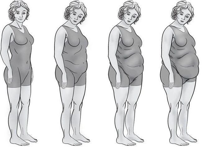 Алиментарное ожирение II–III степени