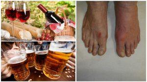 Алкогольные напитки при артрозе разрушают кости