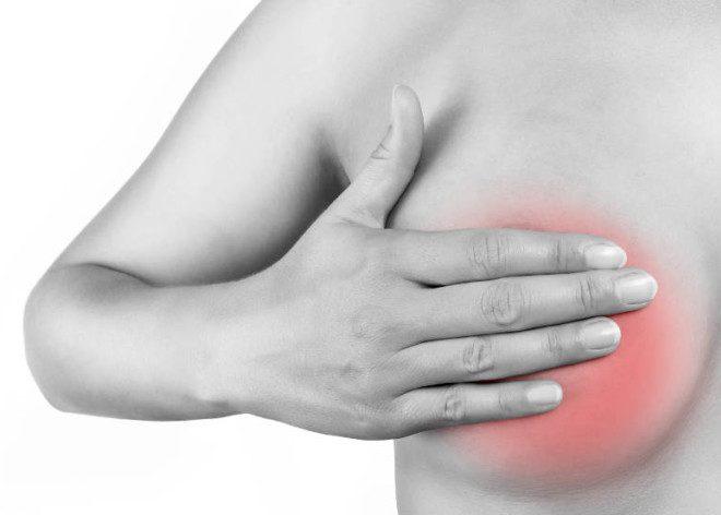 Боли молочных желез