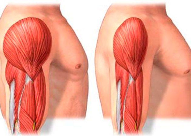 Дистрофия мышц