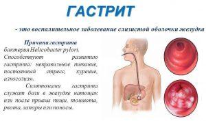 Гастрит развивается при чрезмерном употреблении алкоголя