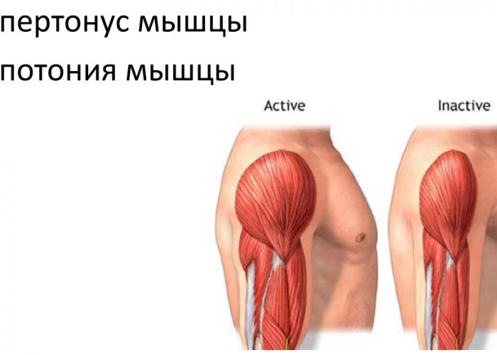 Гипотоническое состояние мышц