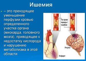 Ишемия - болезнь вызваная курением кальяна
